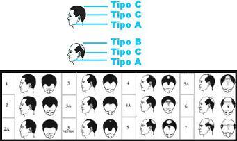 Las máscaras para el crecimiento rápido de los cabello con el coñac