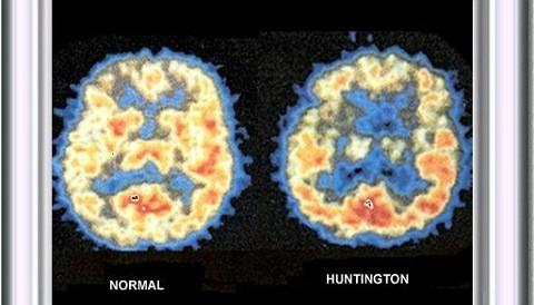 20140227151622-enfermedad-de-huntington.jpg