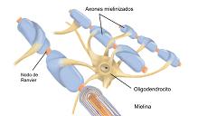 20140228121514-que-es-l-esclerosi-multipleij-848.png