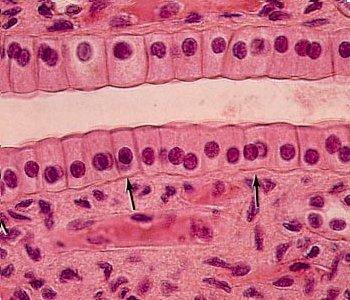 20151028114018-epiteliocub2.jpg