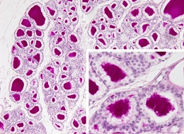 20151030151657-glandulas-tiroides01.jpg